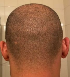 FUE saç ekimi / donör saç ekonomisi